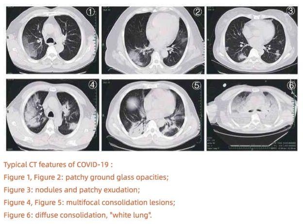 Handbook of COVID-19 Prevention and Treatment radiology ile ilgili görsel sonucu